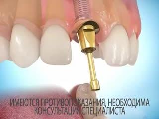 Имплантация зубов в Абакане. Вивап Дент.