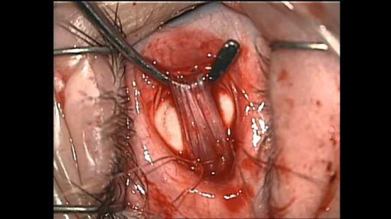 Eye surgery Recession internal rectus Хирург Хабибуллина Н М часть 2