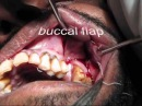 Oroantral fistula closure with buccal advancement flap