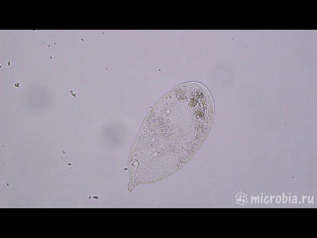 Дефекация инфузории Трахелиус