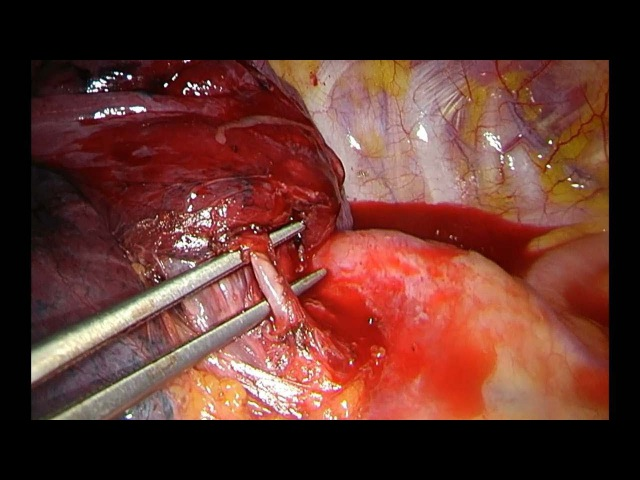 Situs inversus Uniportal VATS anatomic segmentectomy S1 2 and S6