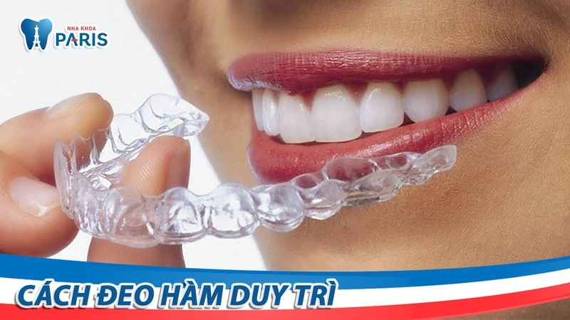 Hướng dẫn đeo hàm duy trì sau niềng răng | Nha khoa Paris