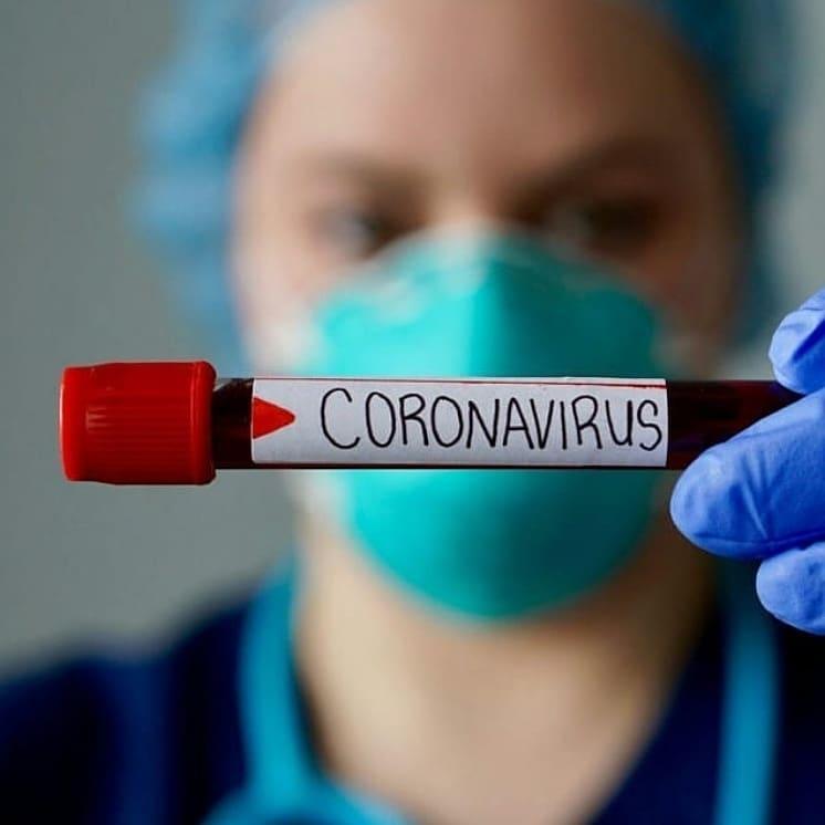 В Саратовской области на 9 часов утра 29 апреля подтверждены 33 новых случая коронавирусной инфекции