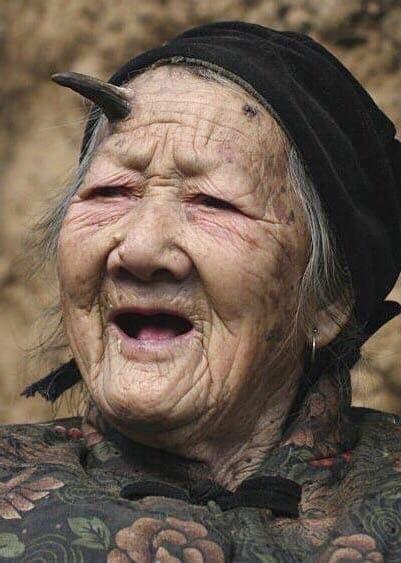У китайской бабульки, которой уже 101 год вдруг вырос рог на лбу!