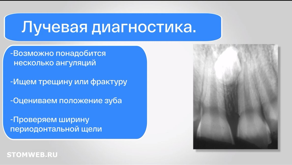 travma-zubov