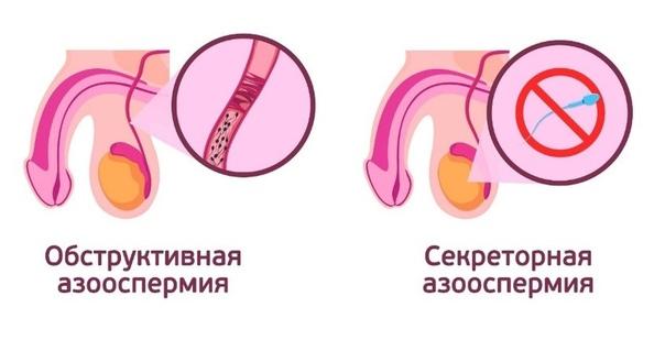 Отсутствие сперматозоидов из за простатита где купить сбор трав от простатита